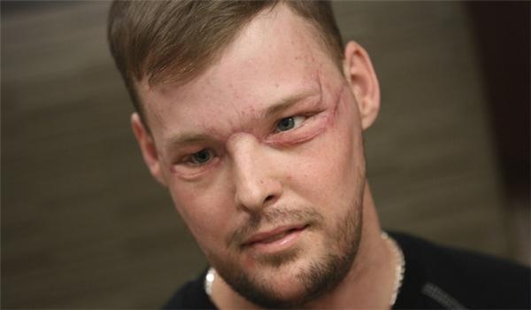 Diện mạo mới của Andy sau cuộc phẫu thuật cấy mặt. (Ảnh: Metro)